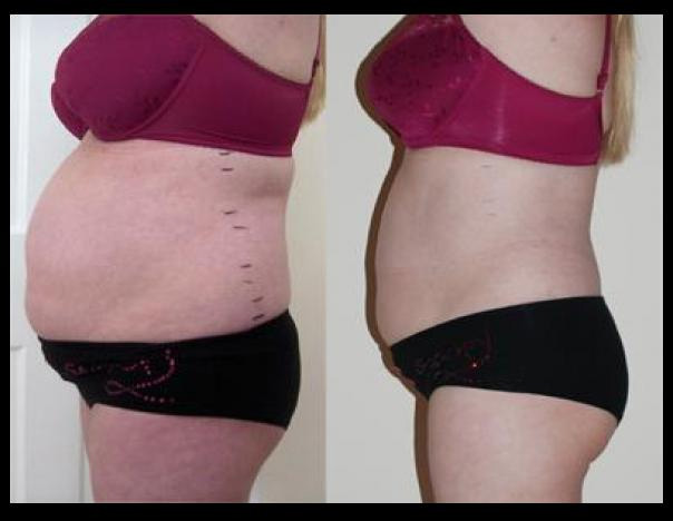 How does Laser Lipo Work? - Laser Lipo